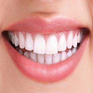 سفید کردن دندان با جوش شیرین با ۶ روش کاربردی و متفاوت